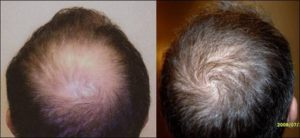Male Before | After Hair Restoration | NeoGraft Near Me